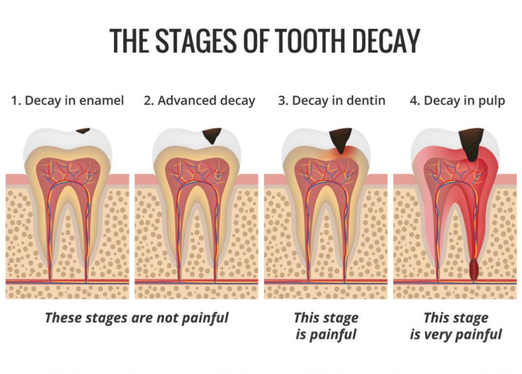 Show stages of cavities